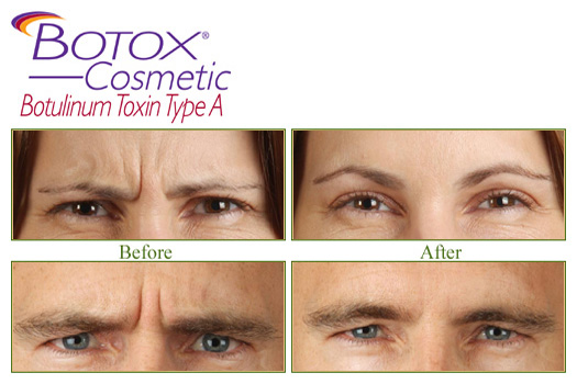 Juvederm - Cosmetic Dermatology Buffalo, NY