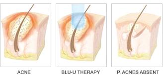 Blue Light Photodynamic therapy- Cosmetic Dermatology Buffalo, NY