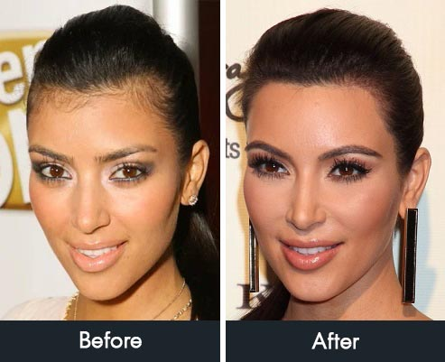 Kim Kardashian Hairline Transformation