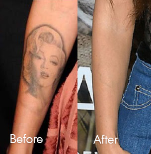 Megan Fox Laser Tattoo Removal