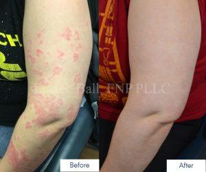 Neiman Dermatology Psoriasis Patient Treatment Results