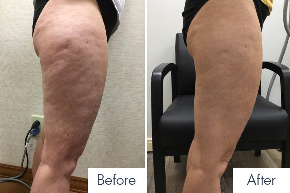 Body Contouring Results Buffalo, NY