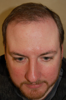 Hair Transplantation After Picture