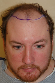 Hair Transplantation Before Picture
