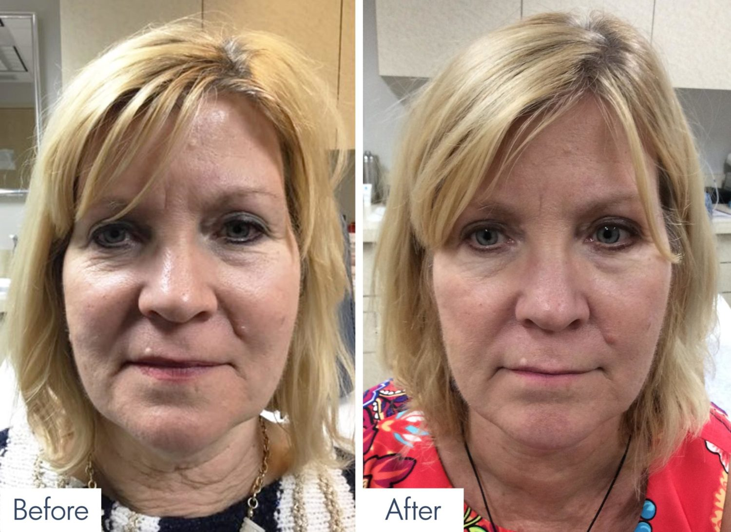 Sublative RF Skin Tightening Patient Results