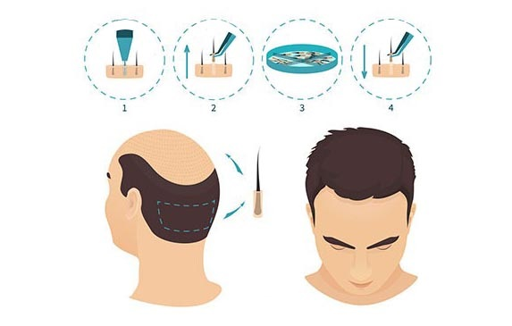 FUE Hair Transplantation Diagram
