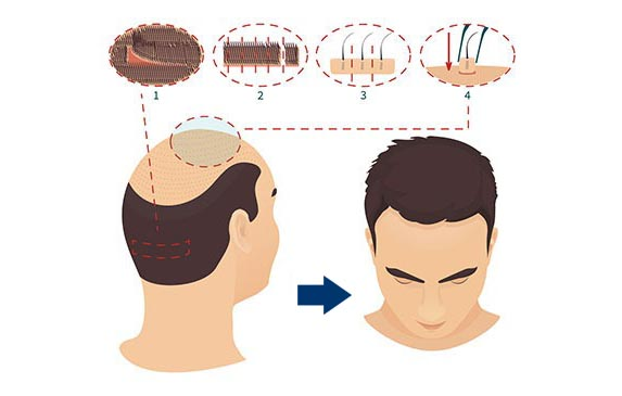 FUT Hair Transplantation Diagram